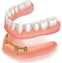 bar-retained dentures