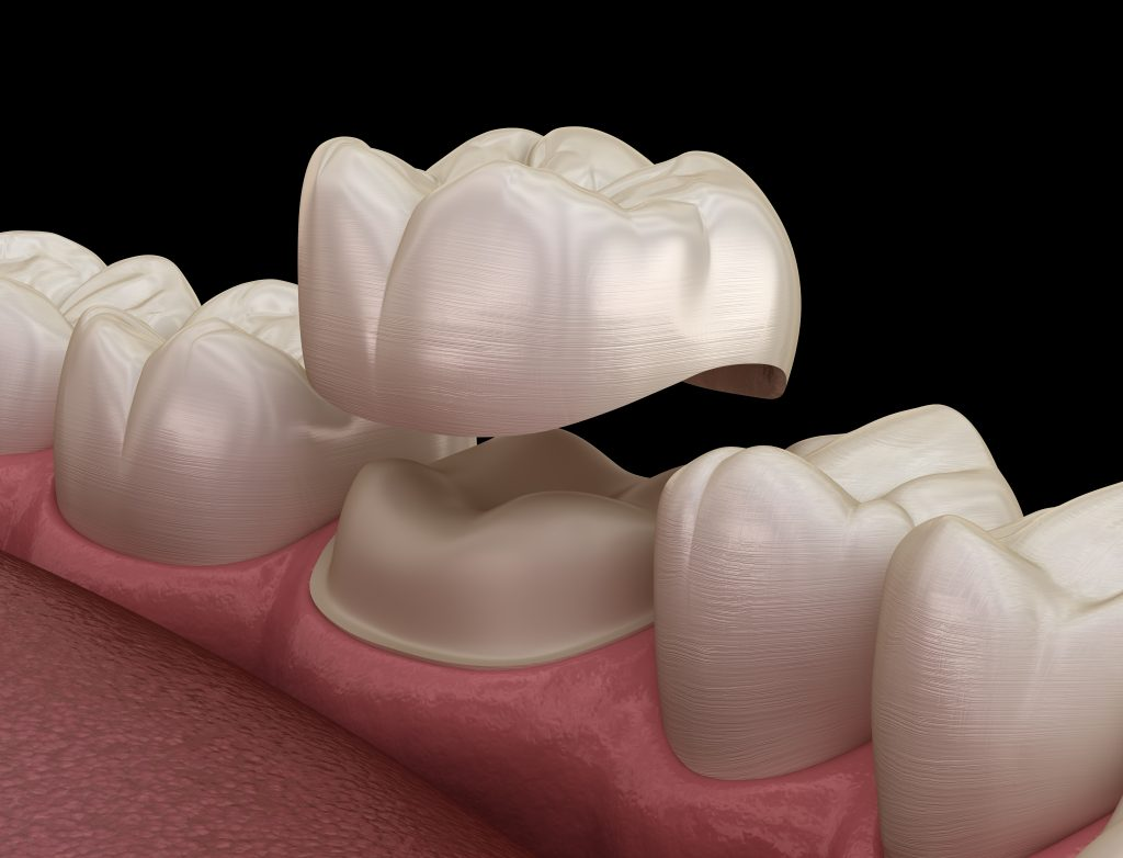 dental crown placed over a tooth
